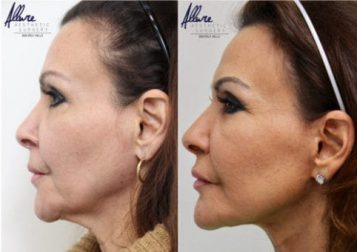 face-and-neck-lift-before-after