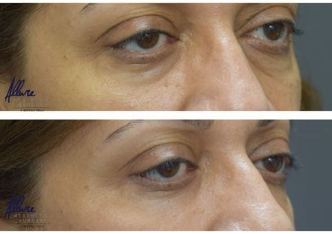 under-eye-rejuvenation-allure-bh1
